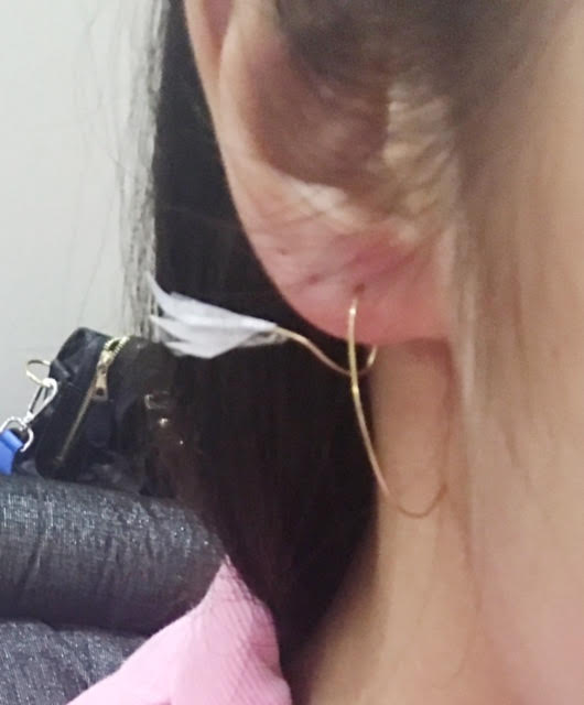 Adjusted the wire and the wing but nothing noticeable from the photo. As u can see, the end of the wire is poking directly onto my neck, which is pretty spiky and uncomfortable.